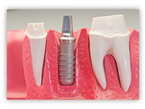 When to get dental implants