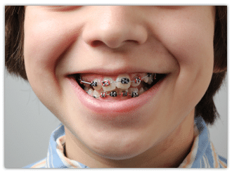 Orthodontica