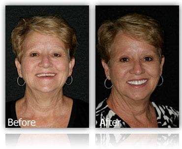 Facelift Dentures Before and Afters